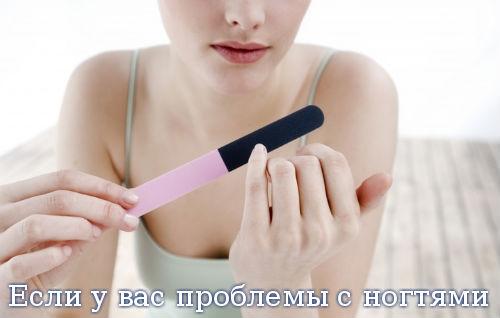 Если у вас проблемы с ногтями