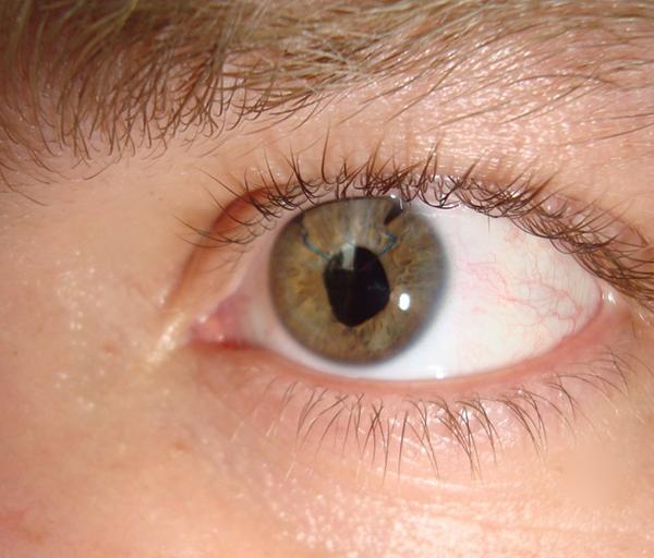 Применение клеточной терапии в офтальмологии